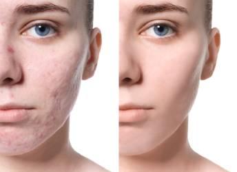 behandeling van acne