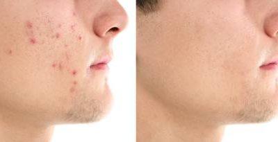 Acne zelf behandelen? Behandel acne zelf op de juiste manier!