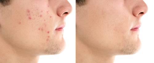 zelf acne behandelen