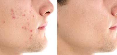 Hoe kan ik puistjes en acne voorkomen en verhelpen?