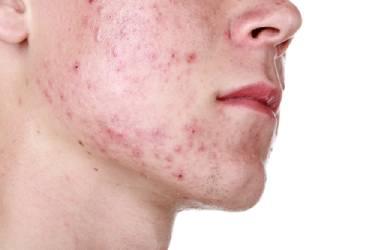 Hormonale acne: dit kun je allemaal tegen hormonale acne doen!