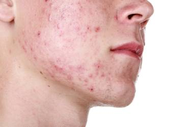 acne hormonen