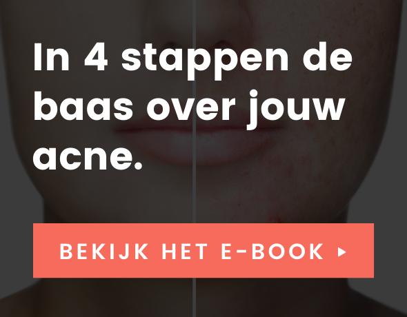Onze bestseller tegen acne