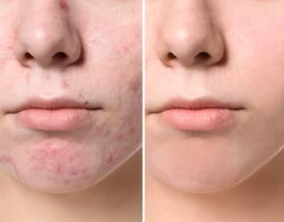 Puistjes op je neus: dit zijn de oorzaken en oplossingen!