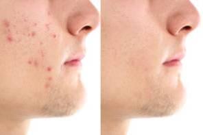 De baas over jouw acne cover