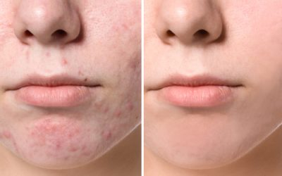 De beste benzoylperoxide tegen puistjes en acne
