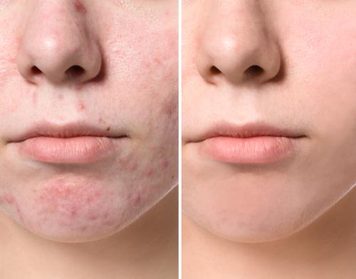beste benzoylperoxide tegen puistjes en acne