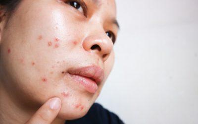 De beste lotion tegen puistjes en acne