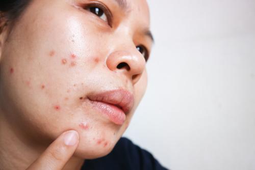 beste lotion tegen puistjes en acne